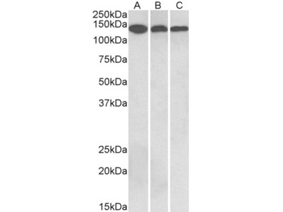 Anti-contactin 1 Antibody (STJ73052)