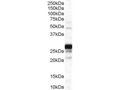 Anti-COMT (internal) Antibody (STJ70972)