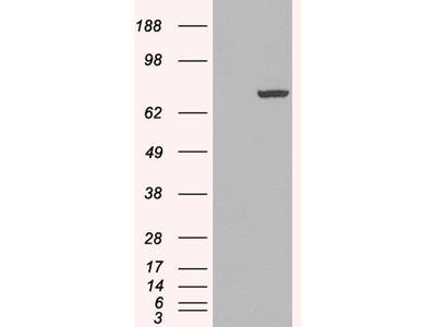 Anti-PAD4/PADI4 Antibody (STJ70617)