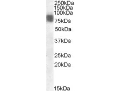 Anti-Cortactin/EMS1 Antibody (STJ70093)