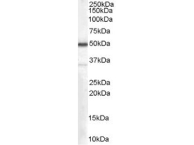 Anti-Chromogranin A precursor Antibody (STJ70936)