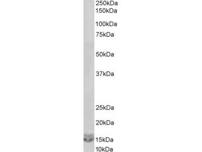 Anti-CXCL2/MIP-2 Antibody (STJ71916)
