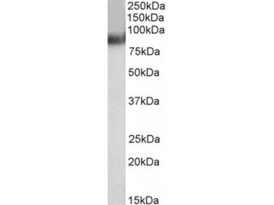 Anti-MURF2/TRIM55 Antibody (STJ70333)