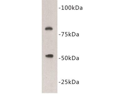 Vitamin K-Dependent Protein C (PROC) Antibody