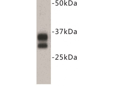 Cluster of Differentiation 8 (CD8) Antibody