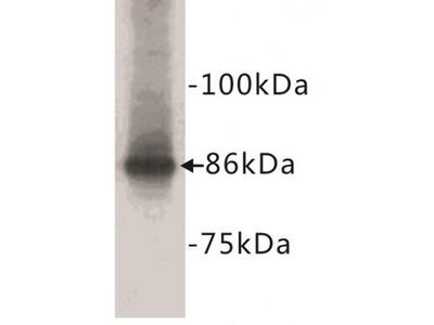 Catenin Beta (CTNNB1) Antibody