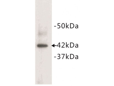 Actin Alpha 1, Cardiac Muscle (ACTC1) Antibody