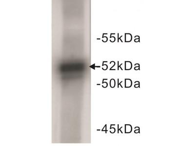 alpha 1-Antitrypsin (SERPINA1) Antibody