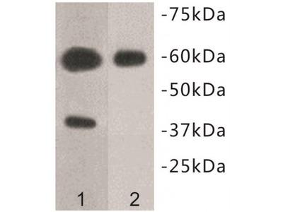 Transmembrane Protein 57 (TMEM57) Antibody