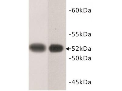 Tubulin Beta (TUBB) Antibody