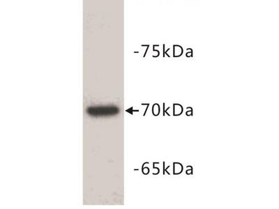 alpha fetoprotein, AFP Antibody