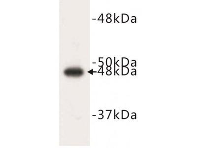 CK17 Antibody