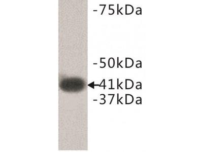 LPA Receptor 1 Antibody
