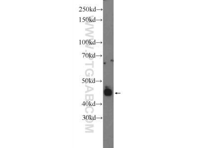 Retinal S antigen Antibody