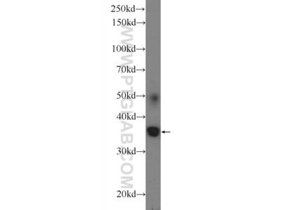 ATRAID Polyclonal Antibody
