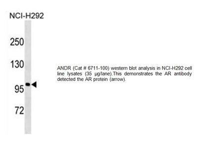 Androgen Receptor Antibody (Clone 549CT16.1.4)