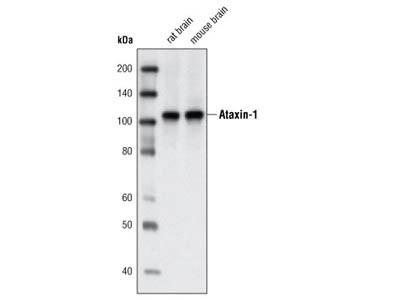 Ataxin-1 Antibody