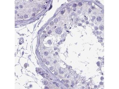 PLC-beta 3 Antibody