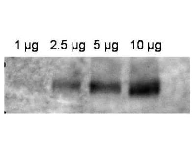 MDR1 / ABCB1 Antibody