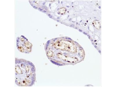 anti Hemoglobin alpha