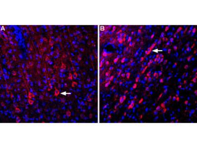 Anti-GRID1 (extracellular) Antibody