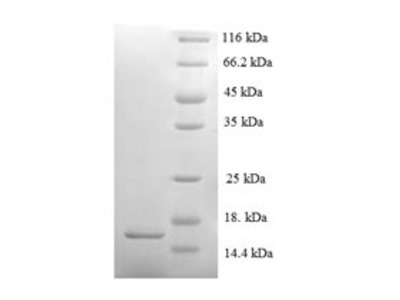 Recombinant Mouse Serum amyloid A-2 protein (Saa2)