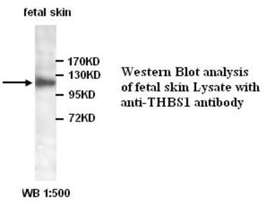 THBS1 Antibody
