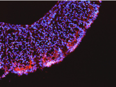 Human / Mouse LRRN1 / NLRR-1 Antibody