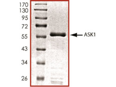 Recombinant Human Active ASK1 (aa 649-946) Protein, CF