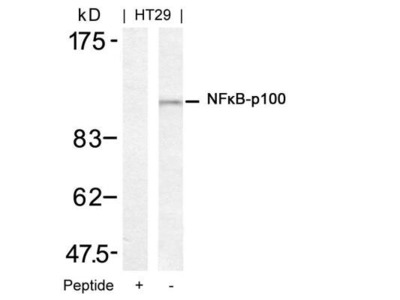 NFkB p100 / p52 Antibody