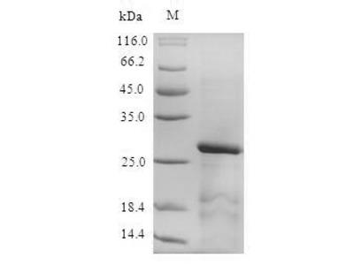 Recombinant Mouse Serine protease inhibitor Kazal-type 3 (Spink3)