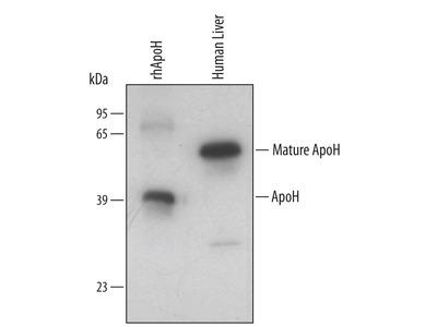 Human Apolipoprotein H / ApoH Antibody