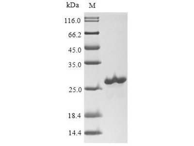 Recombinant Human Suppressor of cytokine signaling 1