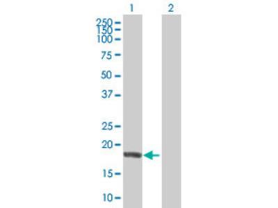 anti-NME6 antibody
