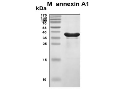 Recombinant Human Annexin A1