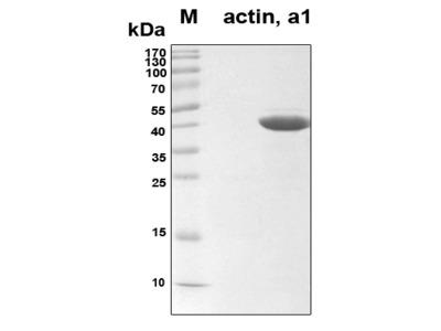 Recombinant Human alpha-actin-1