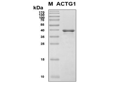Recombinant Human Actin, gamma 1