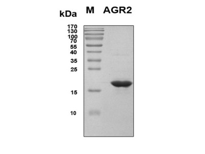 Recombinant Human AGR2
