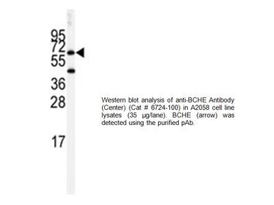 BCHE Antibody (Center)