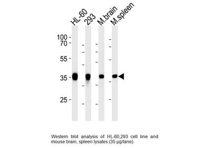 Aldolase C (ALDOC) Antibody (CT) Clone # 859CT9.5.3