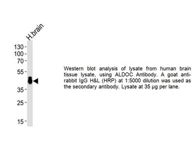 Aldolase C (ALDOC) Antibody (CT)