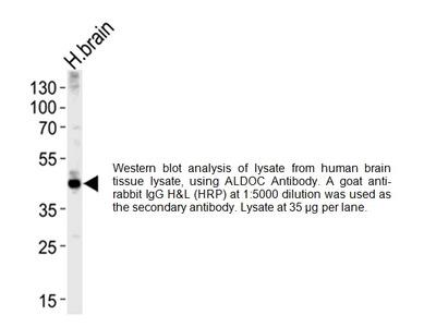 Aldolase C (ALDOC) Antibody (NT)