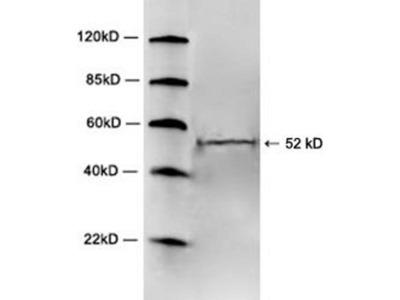 anti-HTR2A (5-HT2a receptor) antibody