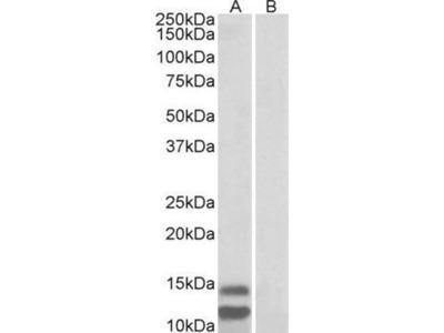 anti-CDKN2B antibody