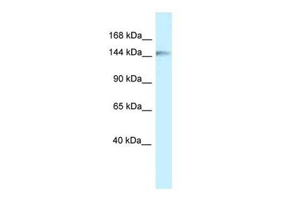 anti-CAP-GLY Domain Containing Linker Protein 1 (CLIP1) (C-Term) antibody