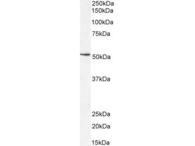 anti-SOX10 antibody