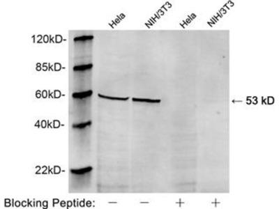 anti-Vimentin (VIM) antibody