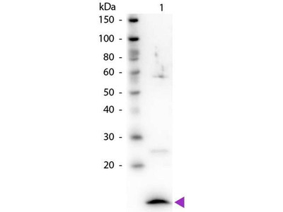 anti-beta-2-Microglobulin (B2M) antibody