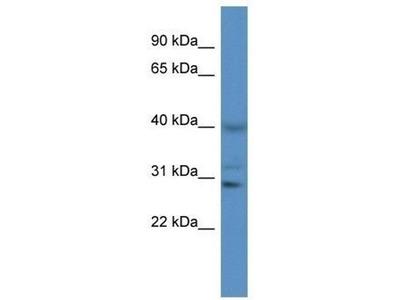 anti-CTSS (Cathepsin S) antibody