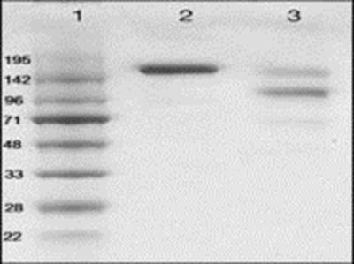 Human anti-Human IgE antibody